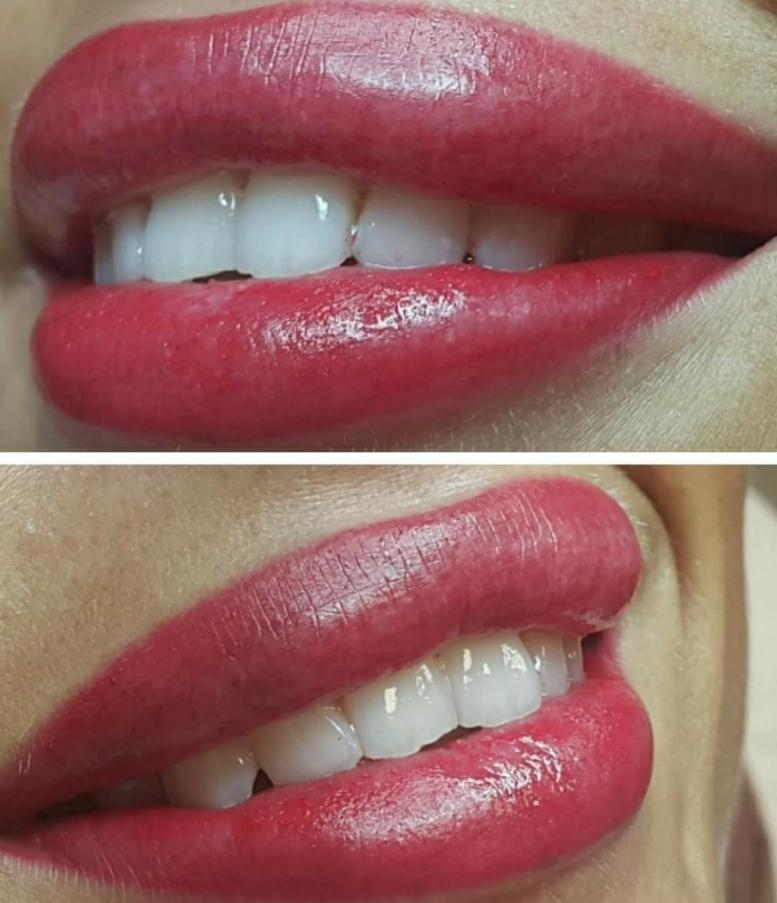 Lips420180124-075034